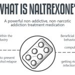 Naltrexone: What are the Side Effects?